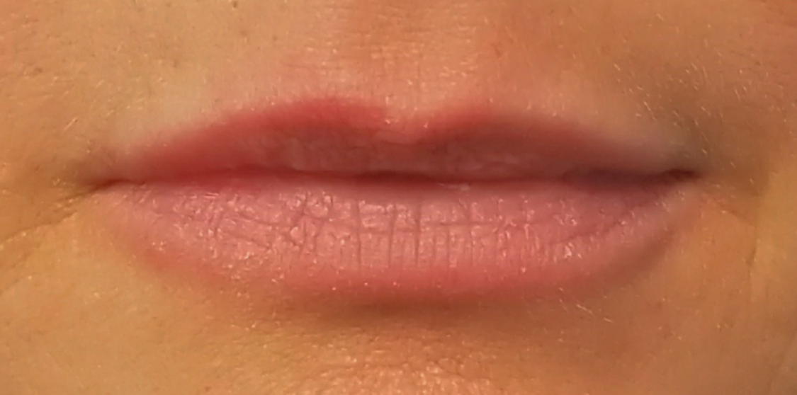 Lip Filler 1 After - Tannan Plastic Surgery