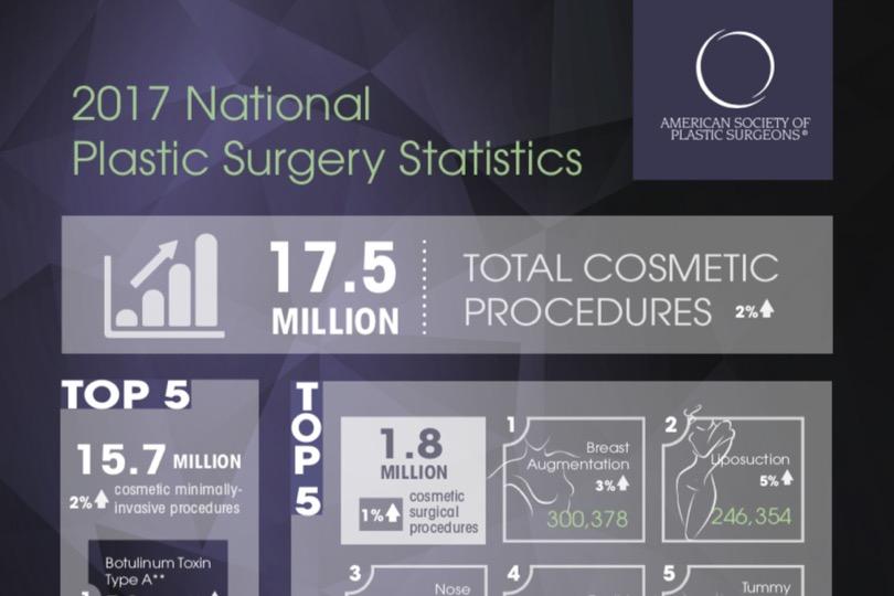 ASPS Most Popular Plastic Surgery Procedures 2017 - Tannan Plastic Surgery