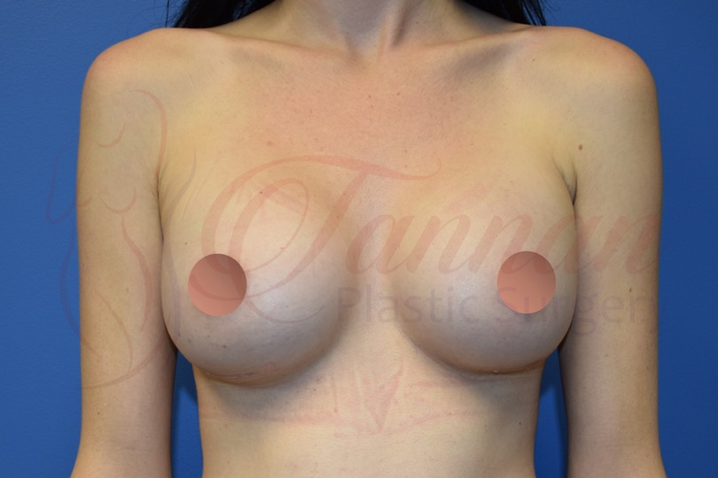 Breast Augmentation 1 AFTER - Tannan Plastic Surgery