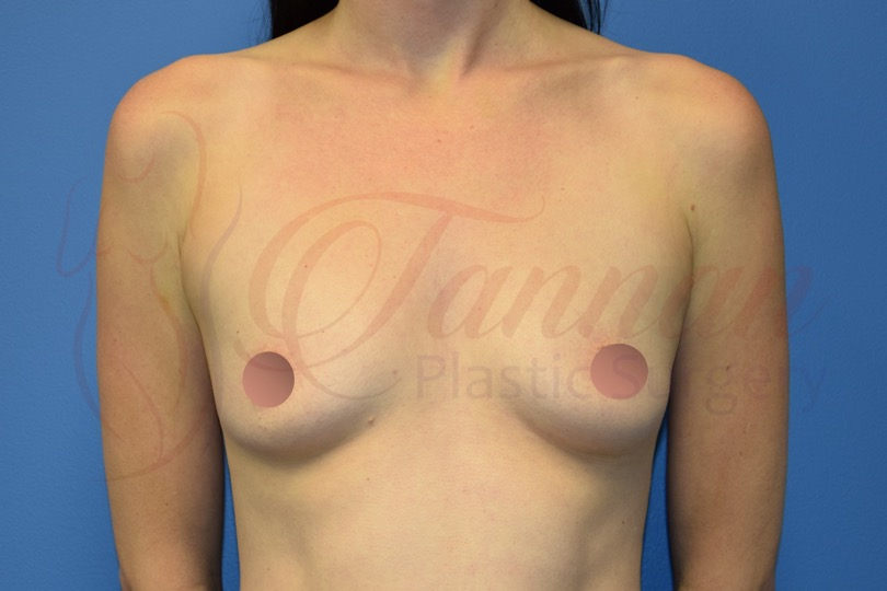 Breast Augmentation 1 BEFORE - Tannan Plastic Surgery