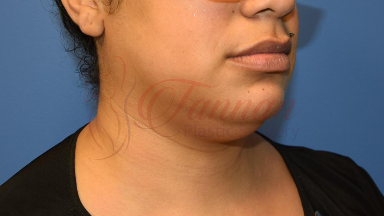 Submental Lipo Before 1a - Tannan Plastic Surgery