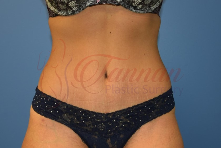 Tummy Tuck 1a AFTER - Tannan Plastic Surgery
