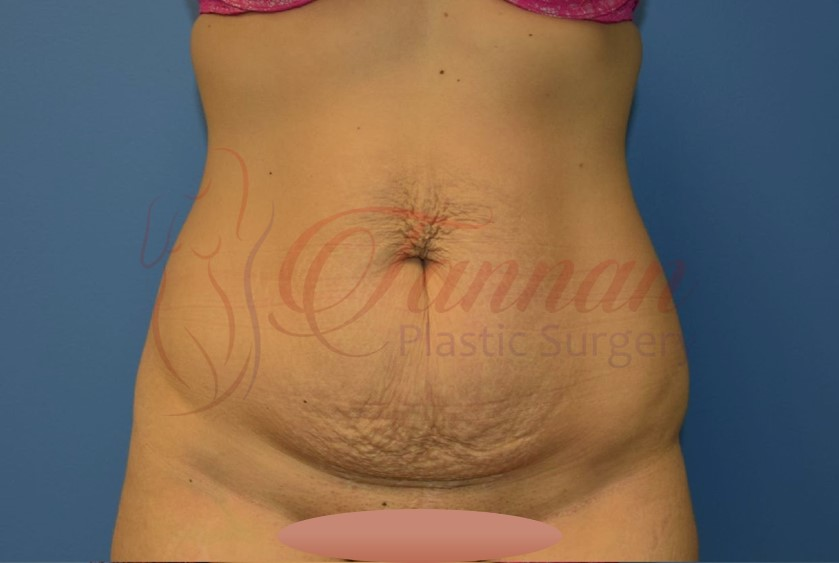 Tummy Tuck 1a BEFORE Tannan Plastic Surgery