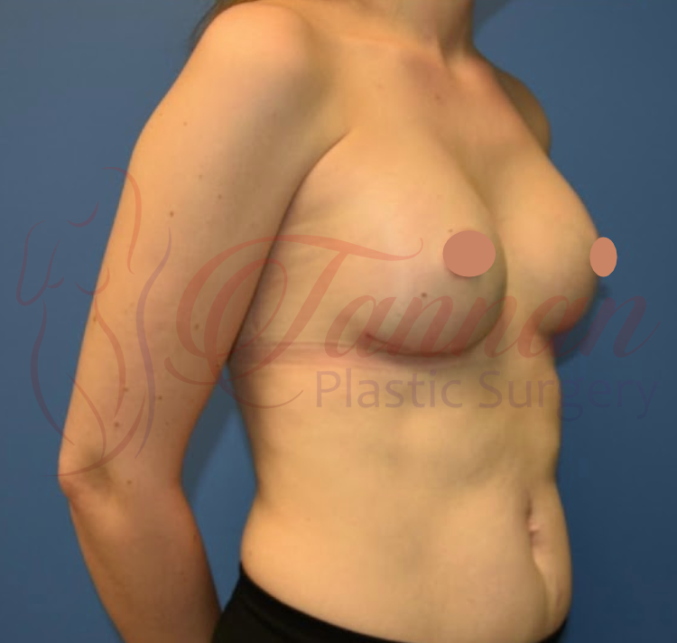 Breast Augmentation 2 AFTER - Tannan Plastic Surgery