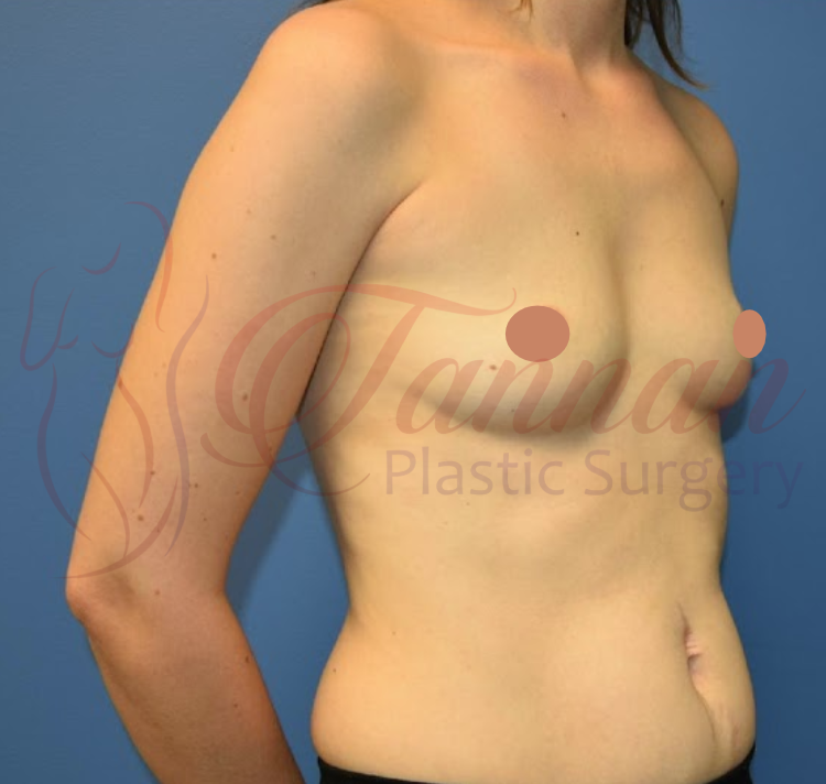Breast Augmentation 2 BEFORE - Tannan Plastic Surgery