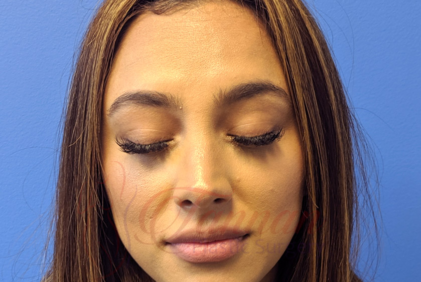 Newtox vs Botox AFTER - Tannan Plastic Surgery