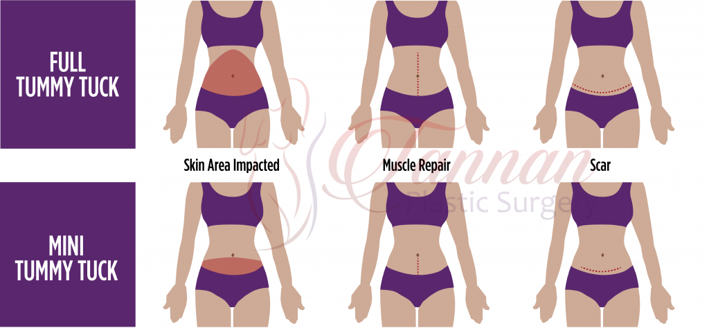 Mini Tummy Tuck Comparison - Tannan Plastic Surgery