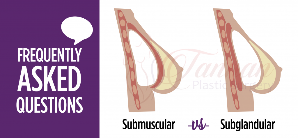 Subglandular -vs- Submuscular Implant Comparison - Tannan Plastic Surgery
