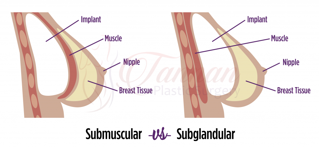 Subglandular -vs- Submuscular Implant Comparison Labeled - Tannan Plastic Surgery