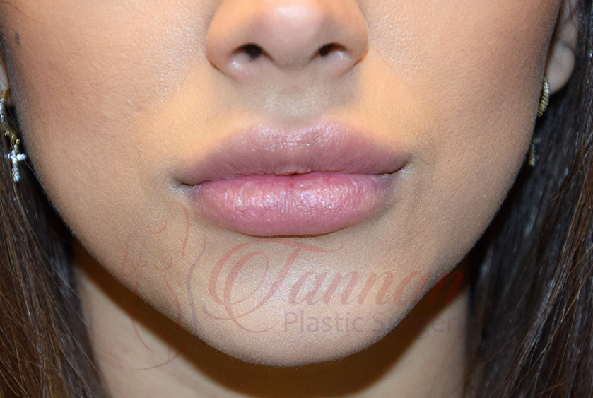 Virginia Lip Filler AFTER - Tannan Plastic Surgery