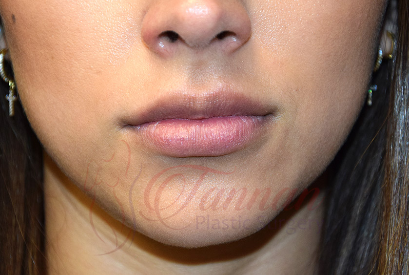 Virginia Lip Filler BEFORE - Tannan Plastic Surgery