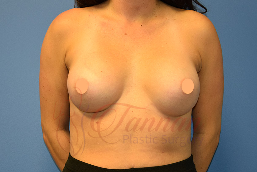 Breast Implant Size After - Tannan Plastic Surgery