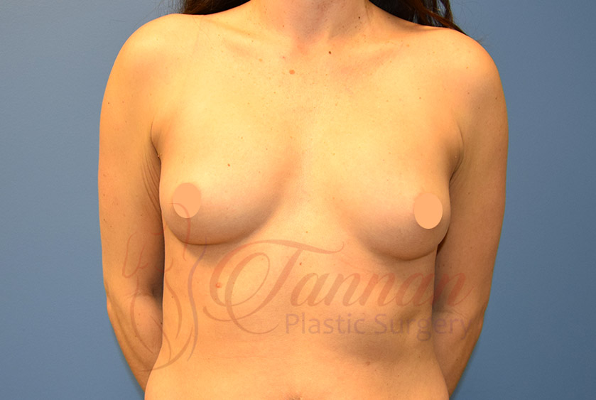 Breast Implant Size Before - Tannan Plastic Surgery