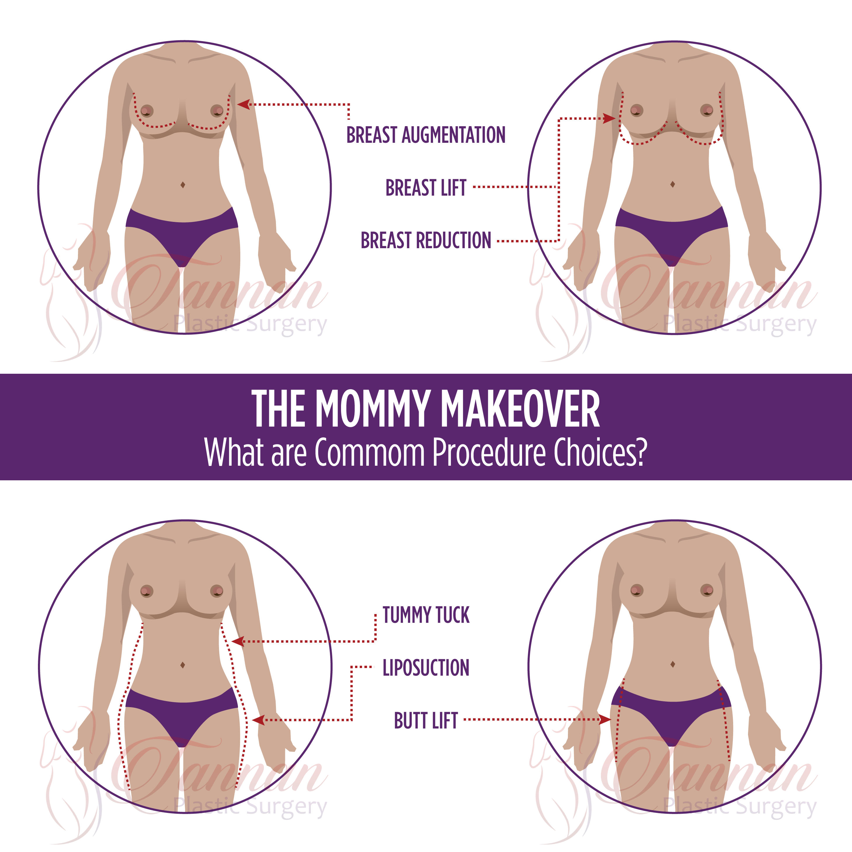 Mommy Makeover Graphic - Tannan Plastic Surgery