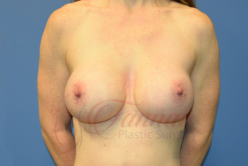 Breast-Augmentation-After-0101-Tannan-Plastic-Surgery