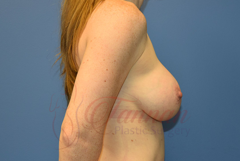 Breast-Augmentation-After-0102-Tannan-Plastic-Surgery