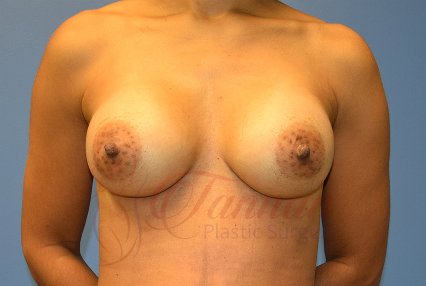 Breast-Augmentation-After-0201-Tannan-Plastic-Surgery