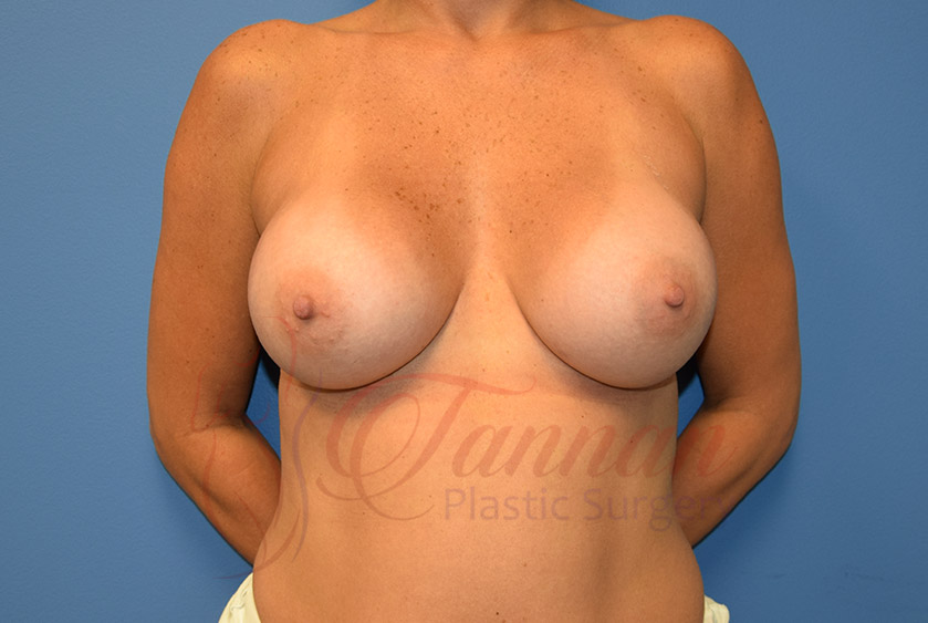 Breast-Augmentation-After-0301-Tannan-Plastic-Surgery