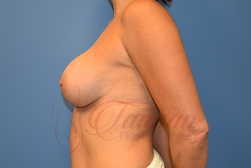 Breast-Augmentation-After-0302-Tannan-Plastic-Surgery