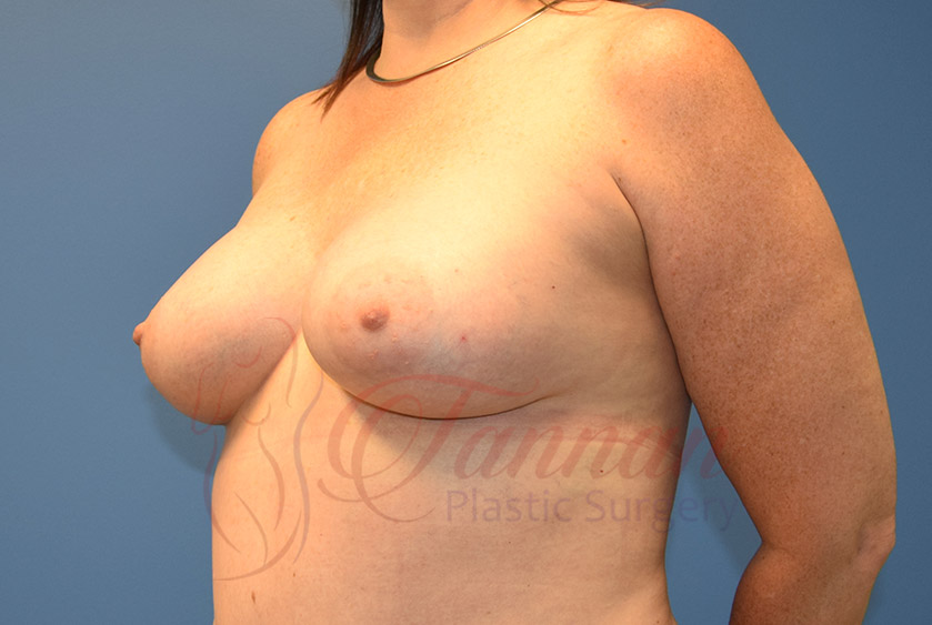 Breast-Augmentation-After-0401-Tannan-Plastic-Surgery