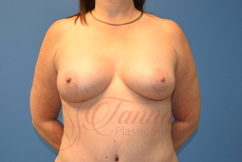 Breast-Augmentation-After-0403-Tannan-Plastic-Surgery