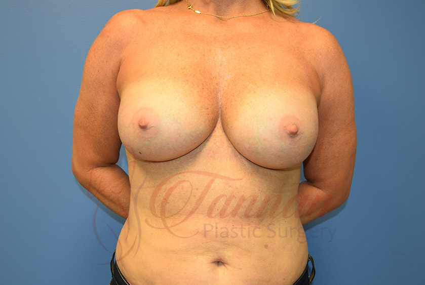 Breast-Augmentation-After-0501-Tannan-Plastic-Surgery