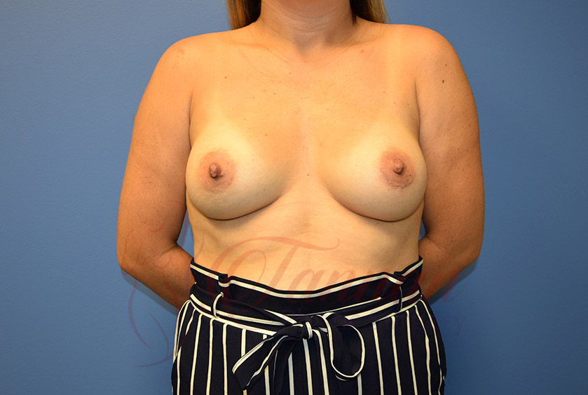 Breast-Augmentation-After-0601-Tannan-Plastic-Surgery