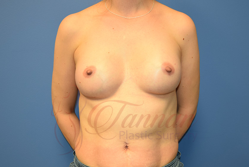 Breast-Augmentation-After-0801-Tannan-Plastic-Surgery