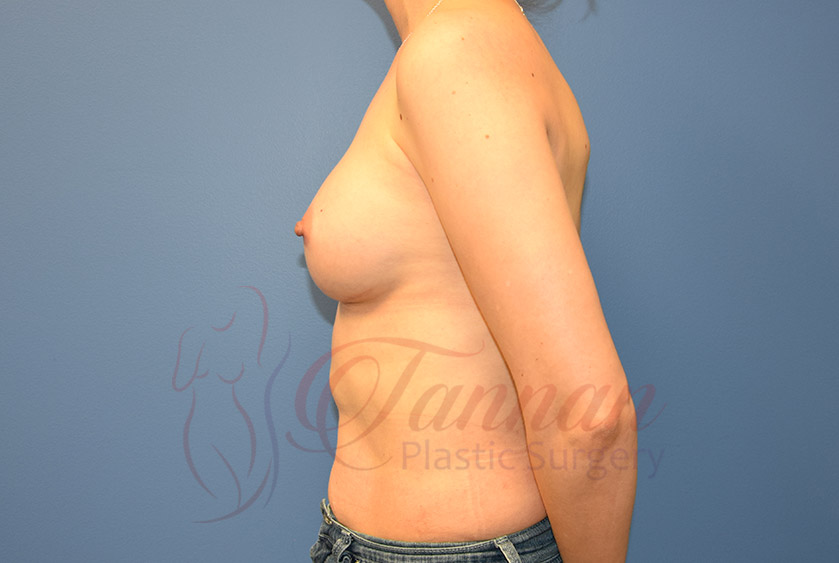 Breast-Augmentation-After-0802-Tannan-Plastic-Surgery