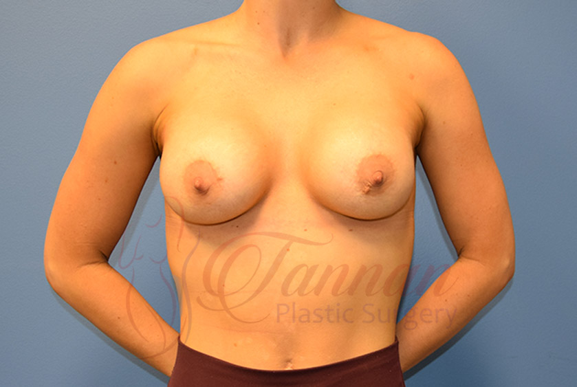 Breast-Augmentation-After-0901-Tannan-Plastic-Surgery