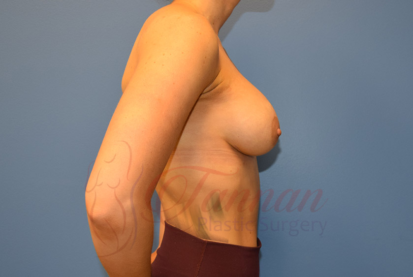 Breast-Augmentation-After-0902-Tannan-Plastic-Surgery