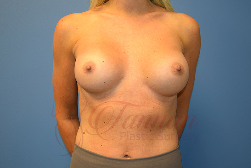 Breast-Augmentation-After-1001-Tannan-Plastic-Surgery