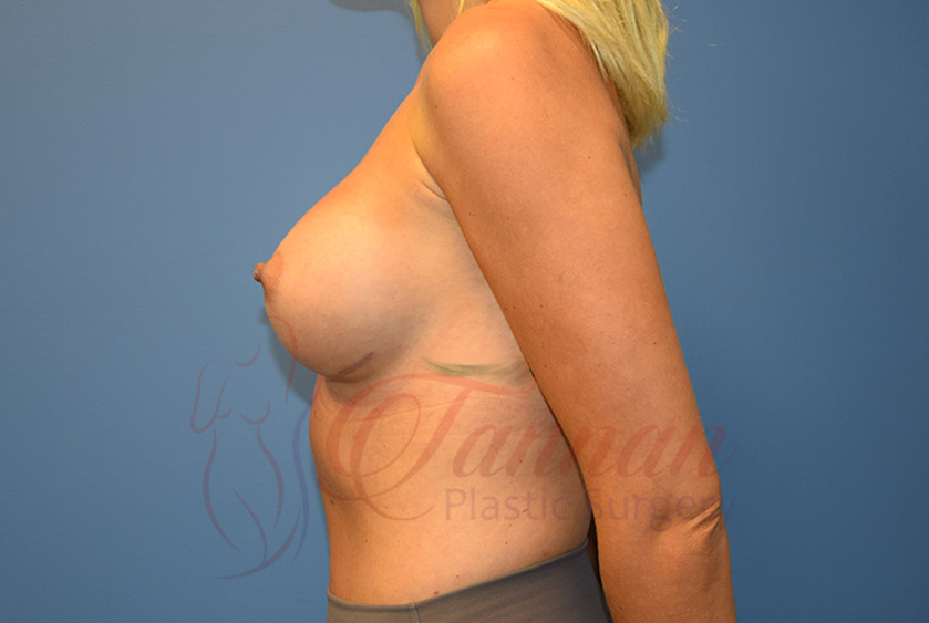Breast-Augmentation-After-1002-Tannan-Plastic-Surgery (1)