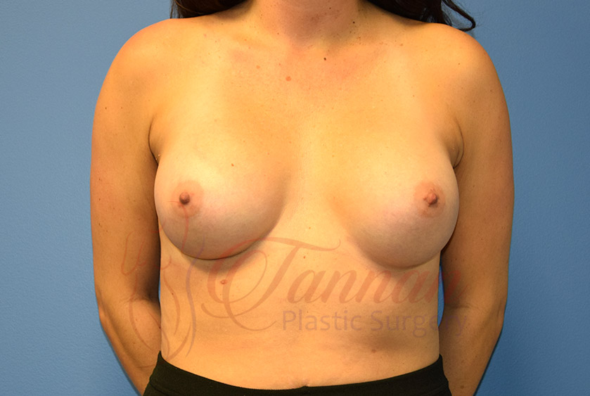 Breast-Augmentation-After-1101-Tannan-Plastic-Surgery