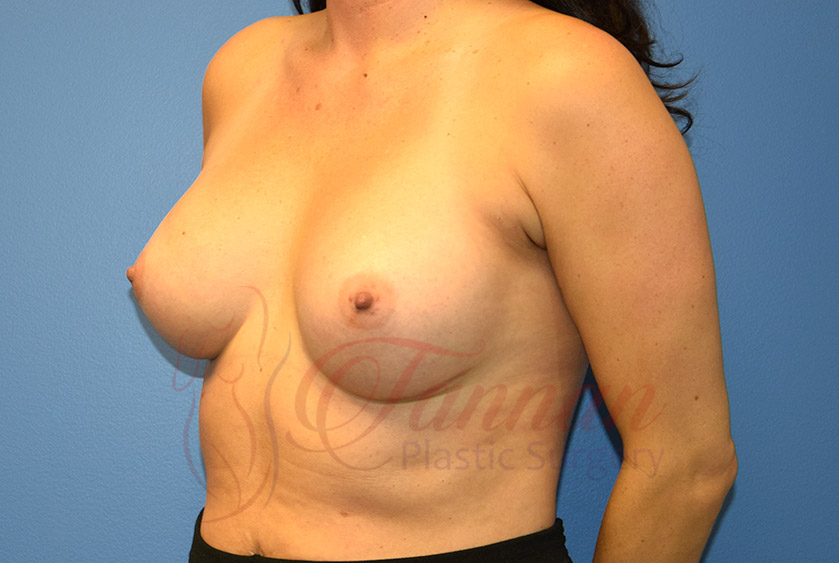 Breast-Augmentation-After-1103-Tannan-Plastic-Surgery