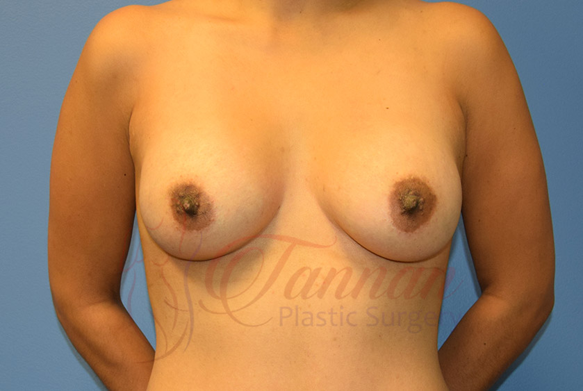 Breast-Augmentation-After-1201-Tannan-Plastic-Surgery