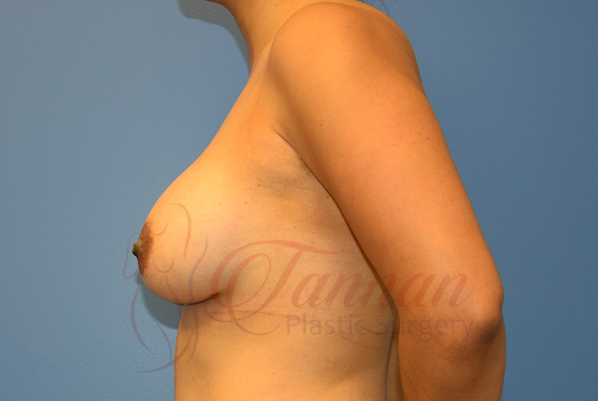 Breast-Augmentation-After-1202-Tannan-Plastic-Surgery