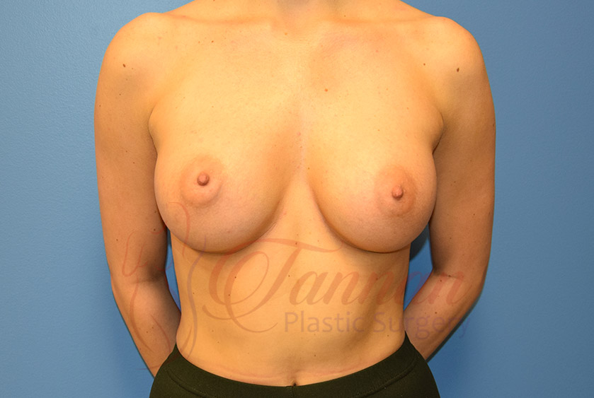 Breast-Augmentation-After-1301-Tannan-Plastic-Surgery