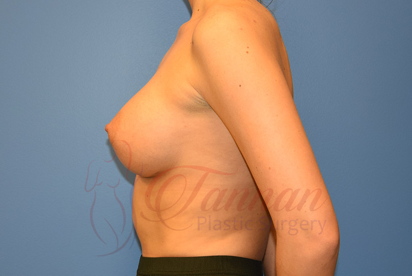 Breast-Augmentation-After-1302-Tannan-Plastic-Surgery