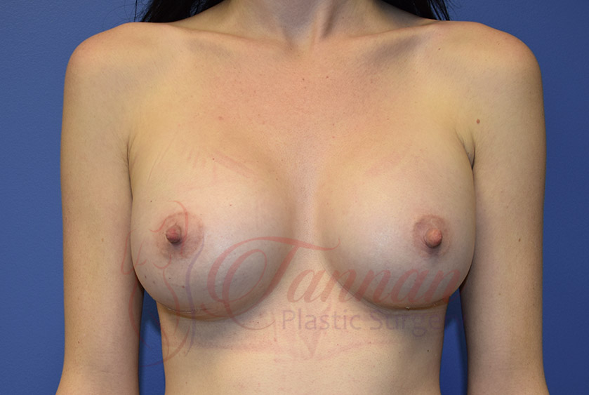 Breast-Augmentation-After-1401-Tannan-Plastic-Surgery