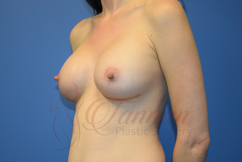 Breast-Augmentation-After-1402-Tannan-Plastic-Surgery