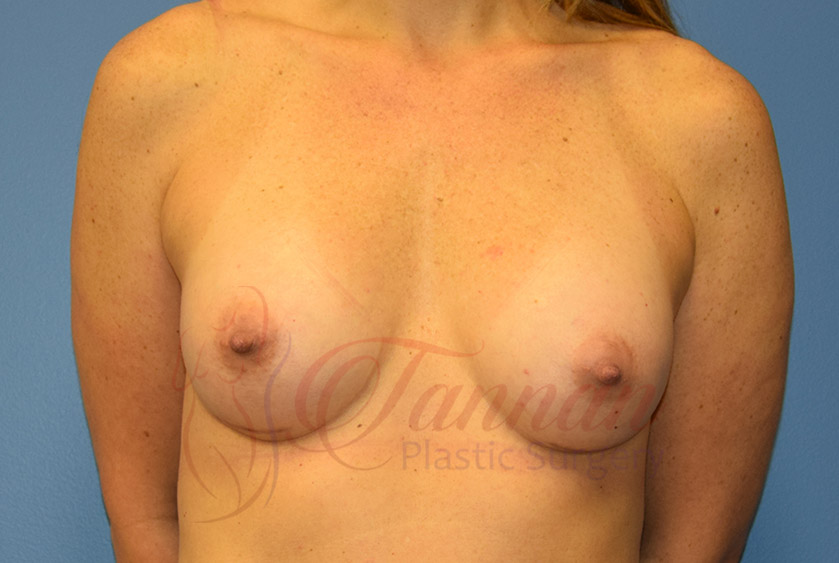 Breast-Augmentation-After-1501-Tannan-Plastic-Surgery