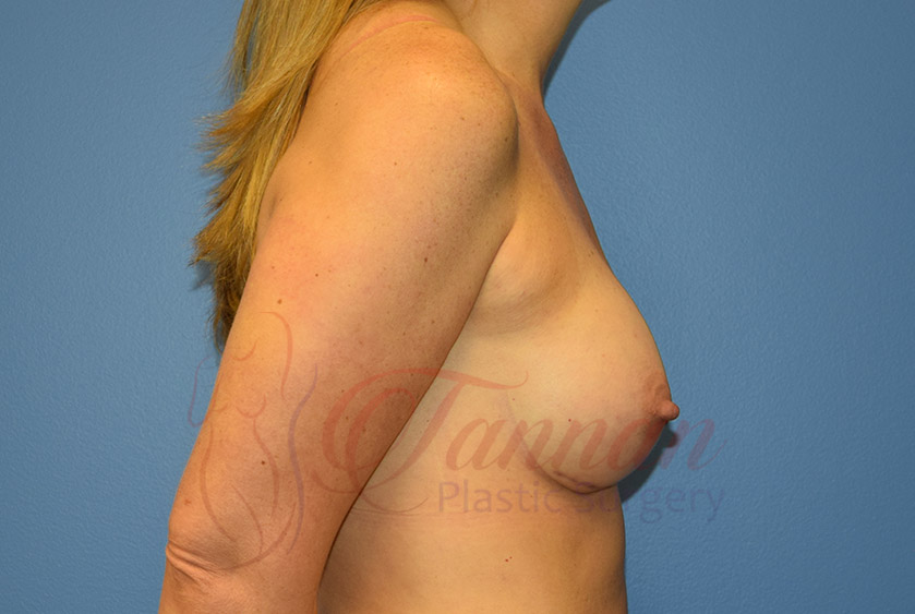Breast-Augmentation-After-1502-Tannan-Plastic-Surgery
