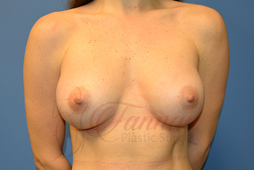 Breast-Augmentation-After-1601-Tannan-Plastic-Surgery
