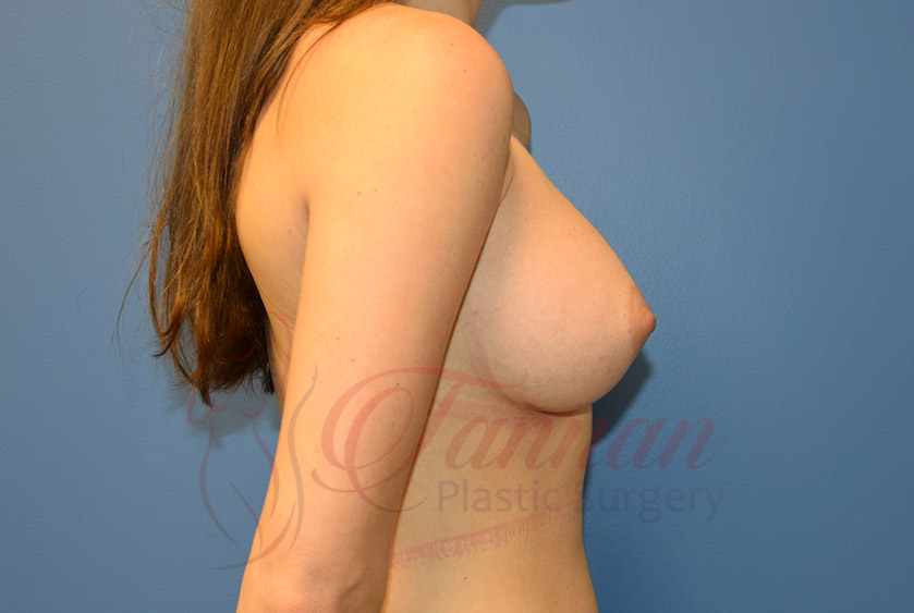 Breast-Augmentation-After-1602-Tannan-Plastic-Surgery
