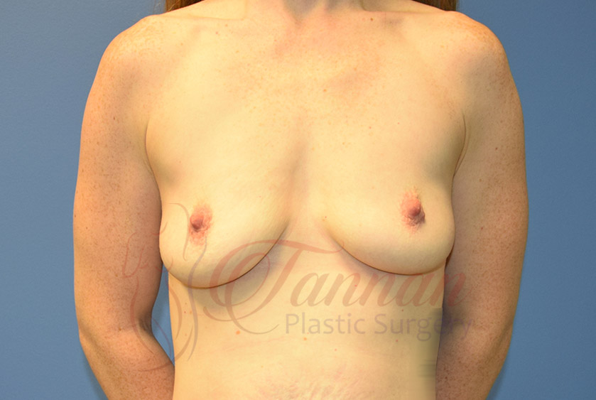 Breast-Augmentation-Before-0101-Tannan-Plastic-Surgery
