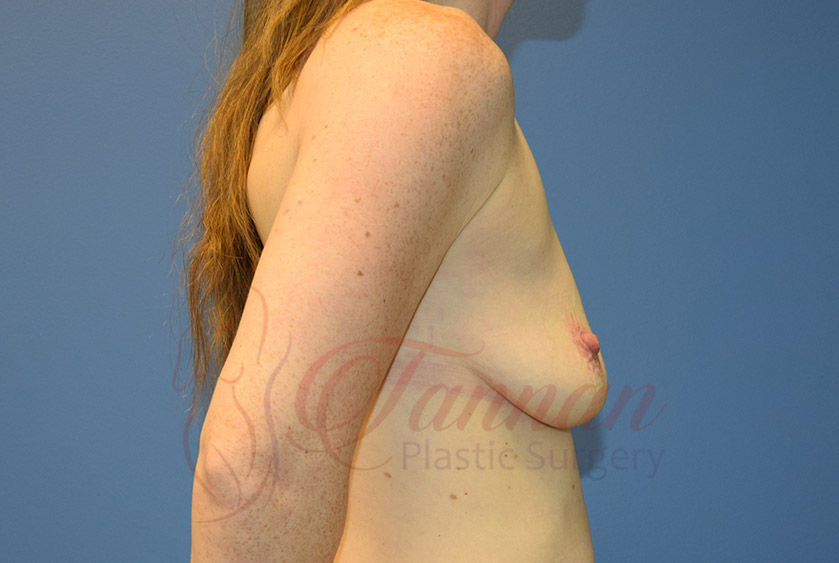 Breast-Augmentation-Before-0102-Tannan-Plastic-Surgery