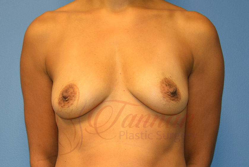 Breast-Augmentation-Before-0201-Tannan-Plastic-Surgery