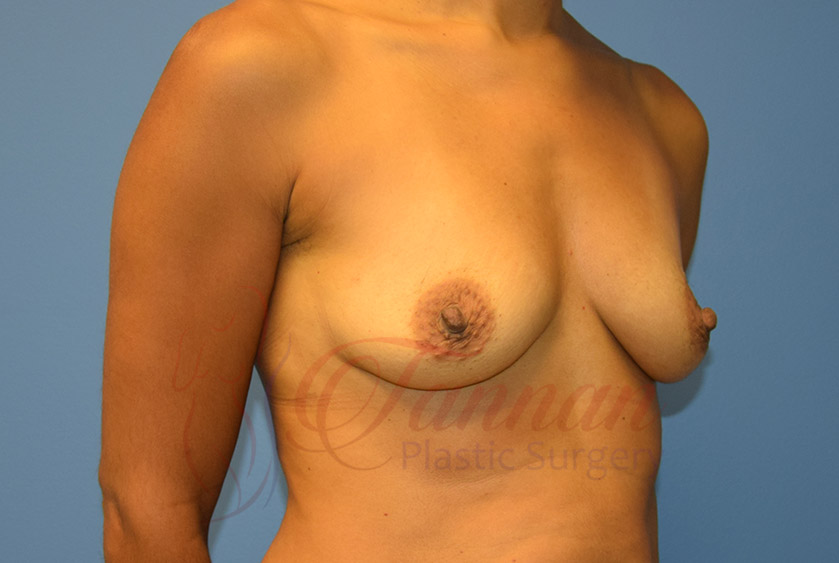 Breast-Augmentation-Before-0203-Tannan-Plastic-Surgery