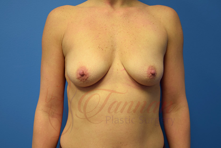 Breast-Augmentation-Before-0301-Tannan-Plastic-Surgery